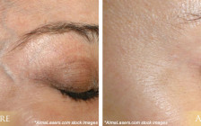 IPL Photofacial before and after