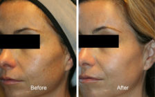 Vensus Laser treatment before and after