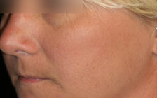 Kybella before pic