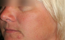 Kybella after pic