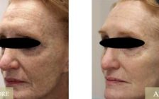 LaseMD Fractional Skin Rejuvenation Before and After Pictures Morehead City, NC